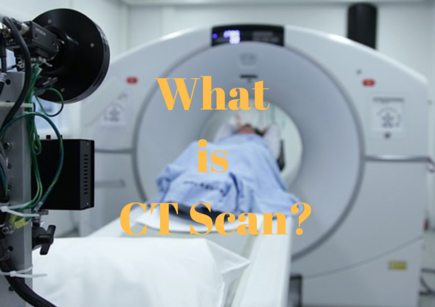 What is CT Scan?