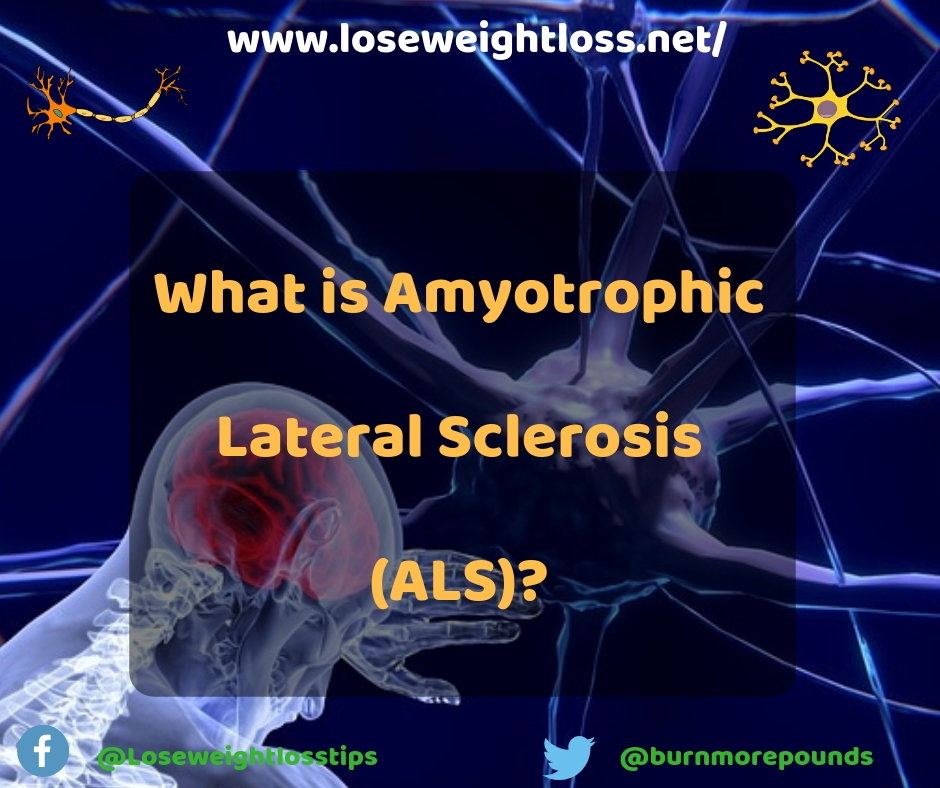 What is Amyotrophic Lateral Sclerosis (ALS)?