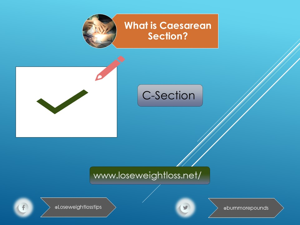 What is Cesarean Section?
