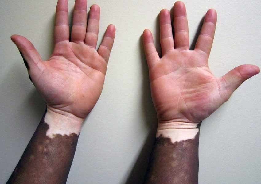 What is Vitiligo?